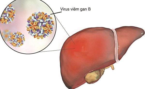 Viêm gan B là một trong những bệnh về gan mà nhiều người Việt đang mắc phải