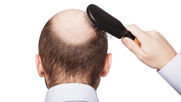 Rụng tóc là nỗi ám ảnh của nhiều người. Rụng tóc không những làm mất thẩm mỹ mà còn dấy lên nỗi lo lắng về sức khỏe