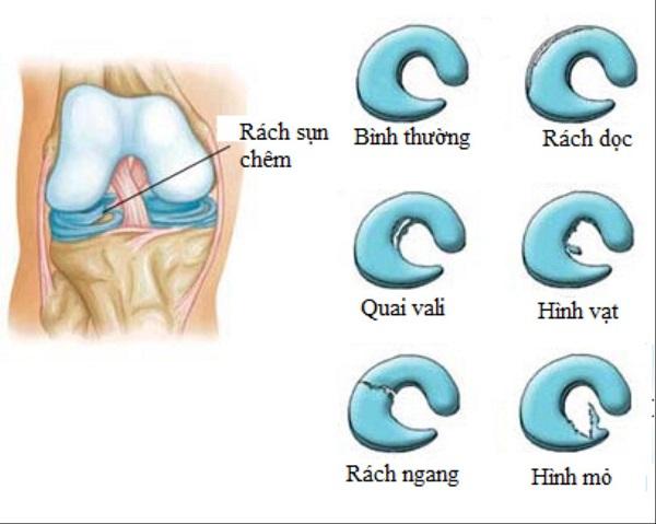 Rách sụn chêm là loại chấn thương trong bóng đá phổ biến, xảy ra tại đầu gối