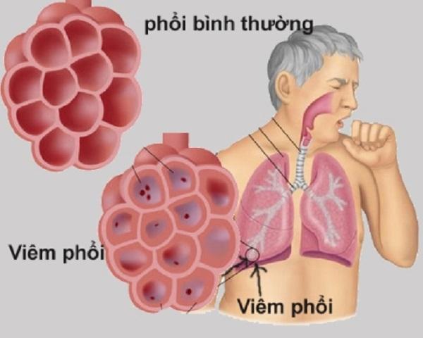 Sử dụng bếp than tổ ong là nguyên nhân gây nên các bệnh về phổi