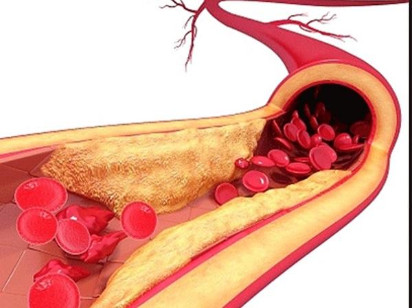 Xơ vừa động mạch cũng có thể dẫn đến các bệnh về tim