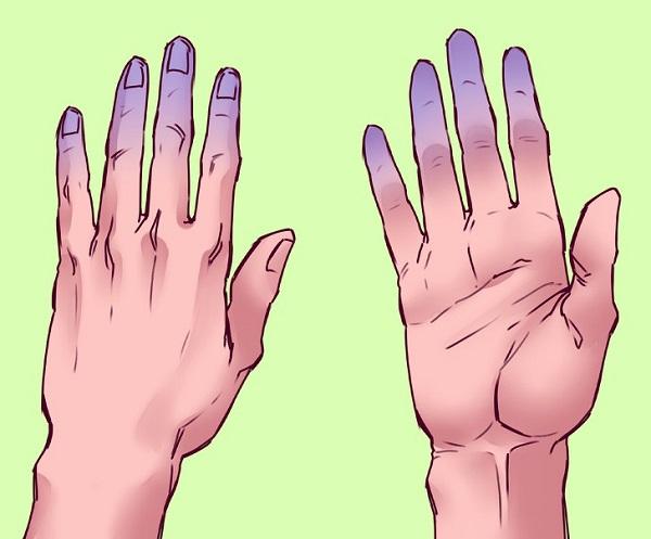 Kết quả thứ 2: Nếu đầu ngón tay của bạn trở nên nhợt nhạt hoặc tím tái, bạn có thể có vấn đề về lưu thông máu. Điều này xảy ra khi lượng oxy trong các tế bào hồng cầu của bạn thấp hoặc do bạn gặp vấn đề về tim mạch. Trong trường hợp này, bạn có thể làm ấm hoặc xoa bóp để các ngón tay trở lại bình thường. Nếu tình trạng các ngón tay vẫn không thay đổi, bạn nên đi khám bác sĩ. Trong trường hợp các ngón tay tím tái đi kèm triệu chứng thở dốc, đau đầu, đau ngực, tê tay, chóng mặt... bạn nên gọi cấp cứu.